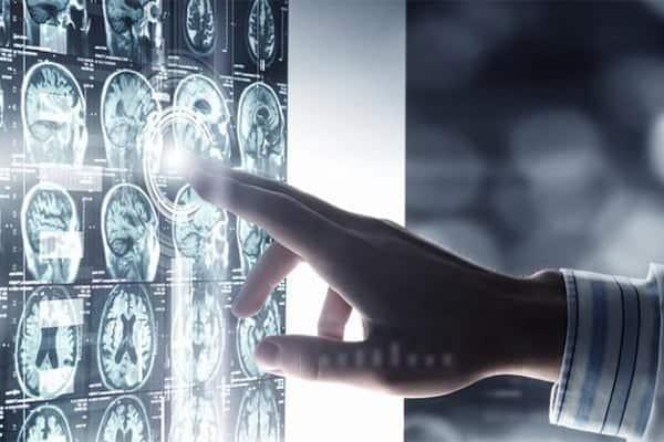 Le scanner TDM cérébral